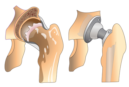 Stryker Hip Replacements and Corrosion