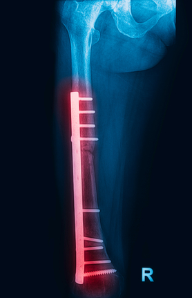 Femur Fracture Infections