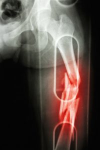 Fracture shaft femur