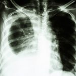 cancer-of-the-lungs